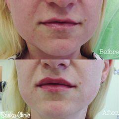 Powiększanie ust: efekty