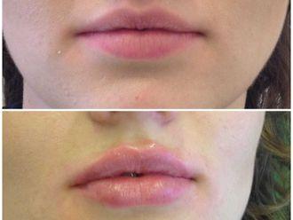 Powiększanie ust (Augmentacja) - 661923