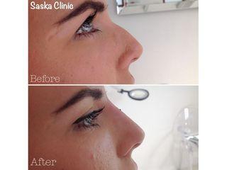 Korekta garbka nosa kwasem hialuronowym - efekty