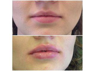Powiększanie ust - efekty