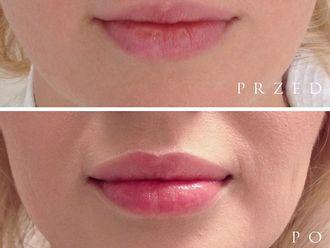 Powiększanie ust kwasem hialuronowym-701420