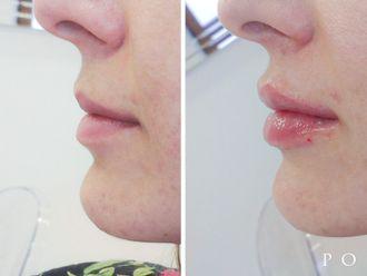 Powiększanie ust kwasem hialuronowym - 701421