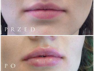 Powiększanie ust kwasem hialuronowym-701422