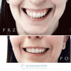 Korekcja uśmiechu dziąsłowego toksyną botulinową - efekty