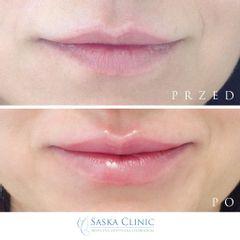 delikatne powiększenie ust wraz z korektą asymetrii