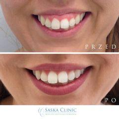 Uśmiech dziąsłowy tzw. gummy smile