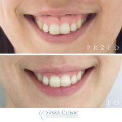 Botoks - gummy smile - Dr Iwona Radziejewska-Choma