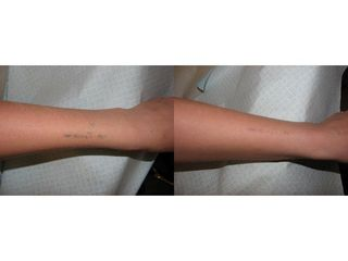Przed i po - usuwanie tatuażu