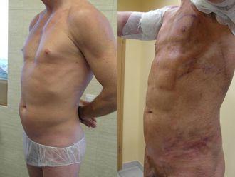 Lipofiling - przeszczep tłuszczu - 654814