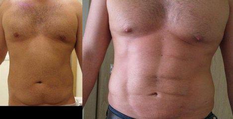 Liposukcja Vaser Lipo: przed i po