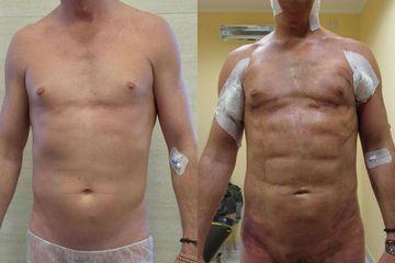 Lipomioplastyka: przed i po