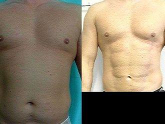 Liposukcja ultradźwiękowa (VASER Lipo®, LipoSelection®) - 654821