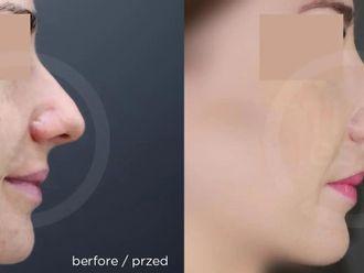 Korekcja nosa (Operacja nosa) - 657724