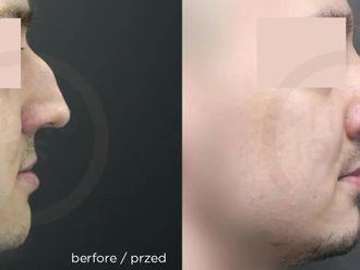 Korekcja nosa (Operacja nosa) - 657730