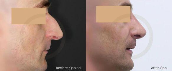 Korekta nosa: przed i po. Timeless Chirurgia Plastyczna, dr Janusz Jaworowski