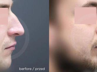 Korekcja nosa (Operacja nosa) - 657746