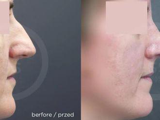 Korekcja nosa (Operacja nosa) - 657748