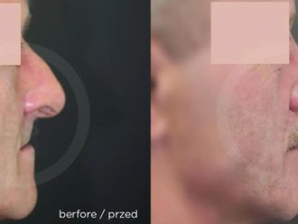 Korekcja nosa (Operacja nosa) - 657750