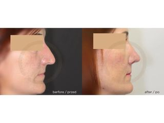 Korekta nosa - przed i po. Klinika Timeless