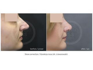 Korekta nosa - przed i po. Klinika Timeless.