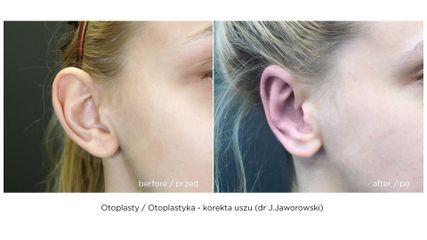 Korekta uszu, przed i po zabiegu (Timeless - dr J.Jaworowski)