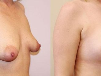 Powiększanie piersi (Augmentacja)-652897