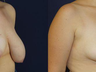 Zmniejszenie piersi-652904
