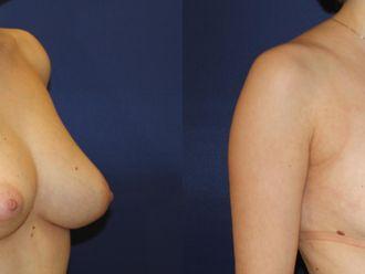 Zmniejszenie piersi-652914