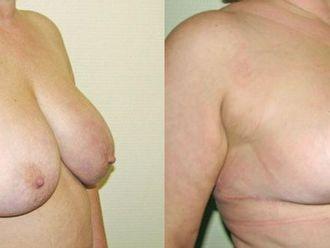 Modelowanie piersi (Lifting piersi, Mastopeksja)-652934