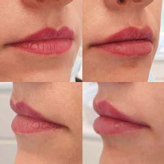 Modelowanie ust kwasem hialuronowym - Ruczaj Clinic