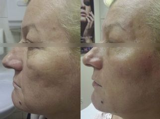 Wolumetria twarzy - Ruczaj Clinic