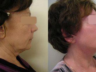 Lifting twarzy-657454