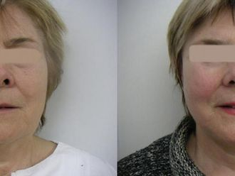Lifting twarzy-657456