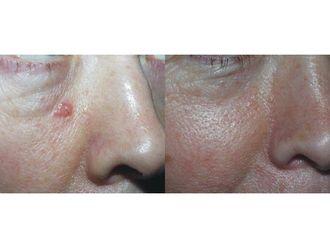 Laserowe zabiegi dermatologii estetycznej-689867