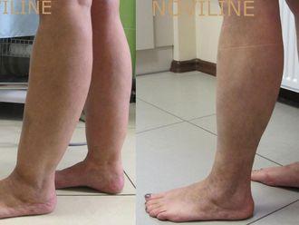 Liposukcja (odsysanie tłuszczu)-656214