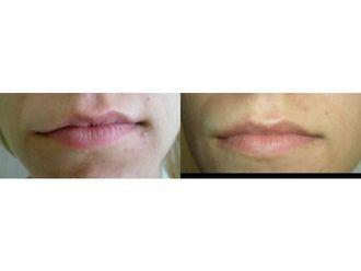 Powiększanie ust własnym tłuszczem-686849