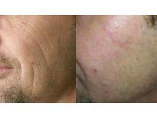 Wypełnianie bruzd wargowo-nosowych kwasem hialuronowym - przed i po