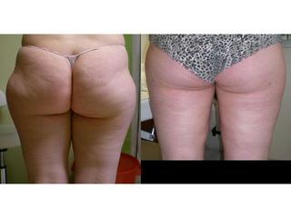Liposukcja bryczesów - przed i po