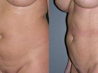 Liposukcja (odsysanie tłuszczu)-651026