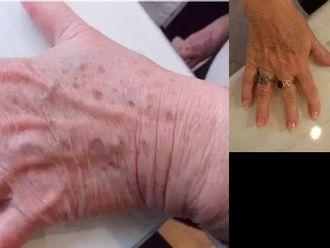 Usuwanie znamion, brodawek, włókniaków i zmian skórnych-660056