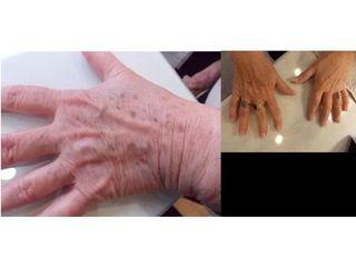 Usuwanie przebarwień na dłoniach - przed i po