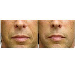 Przed i po: kwas hialuronowy