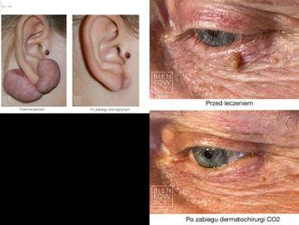 Usuwanie znamion, brodawek, włókniaków i zmian skórnych-654870
