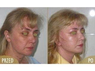 Anti-aging - przed i po