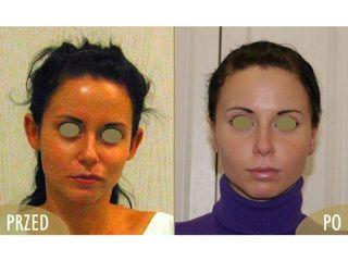 Otoplastyka - przed i po