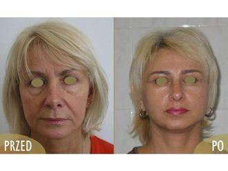 Lifting twarzy-685691