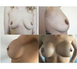 Powiększanie biustu - przed i po