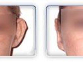 Korekcja uszu-653999