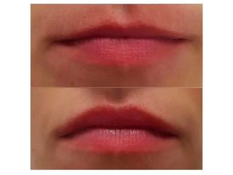 Powiększanie ust kwasem hialuronowym-689135