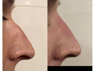 Korekta nosa kwasem hialuronowym-689307
